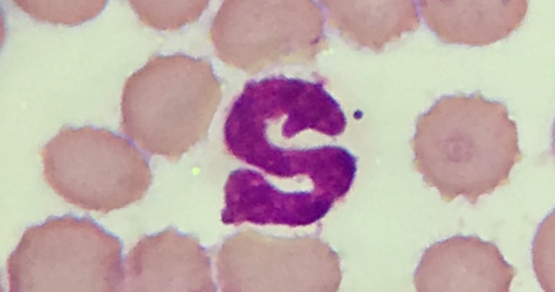 Differentiatie witte bloedcellen